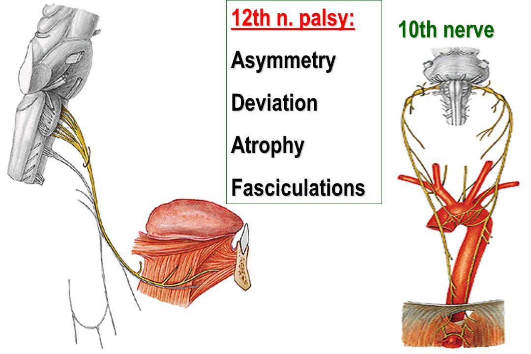 12th n. palsy: Asymmetry Deviation Atrophy Fasciculations 10th nerve