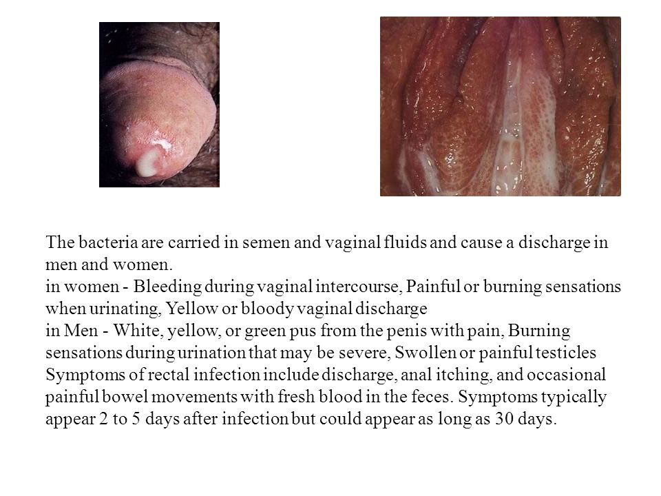 The bacteria are carried in semen and vaginal fluids and cause a discharge in men and women.