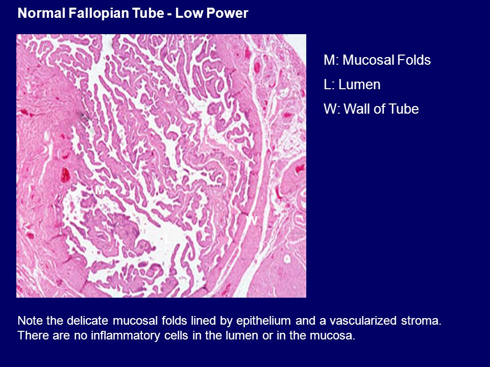 Normal Fallopian Tube - Low Power