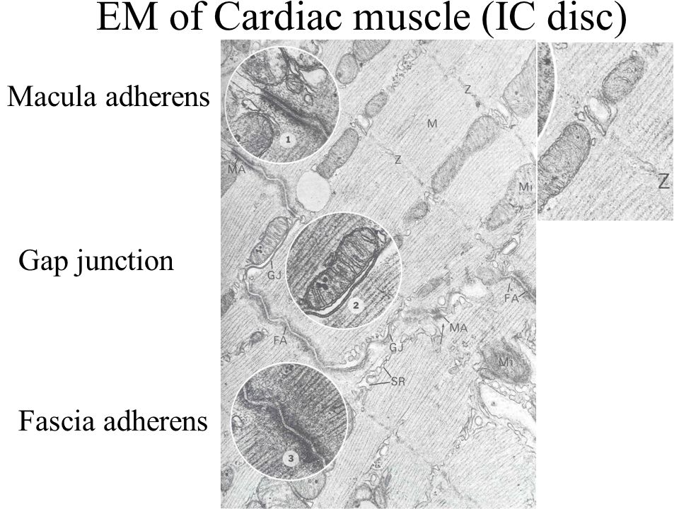 EM of Cardiac muscle (IC disc)