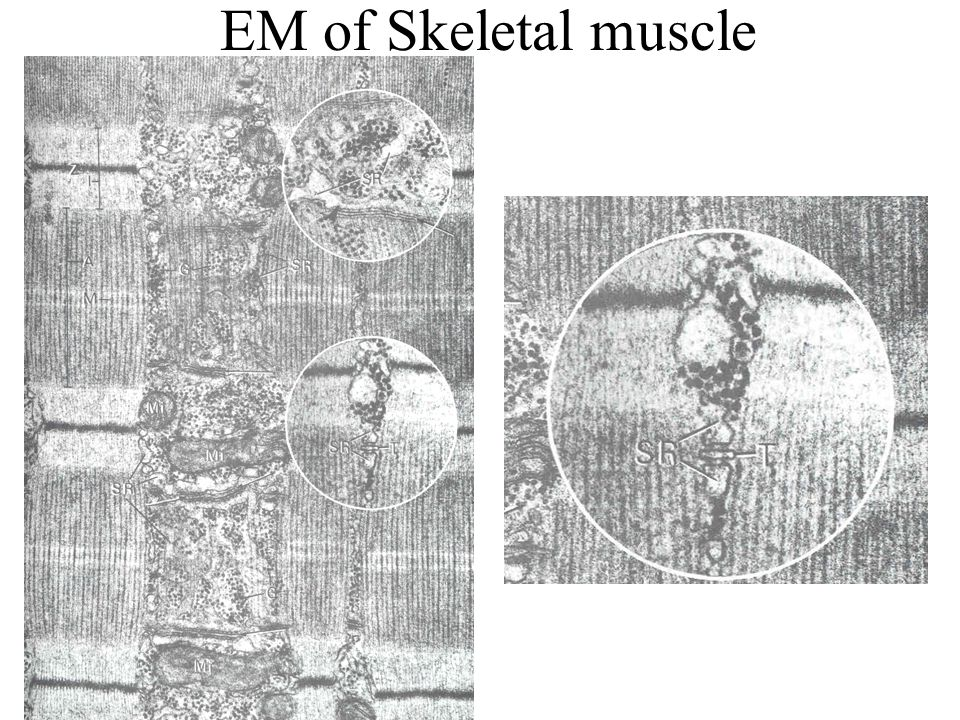 EM of Skeletal muscle