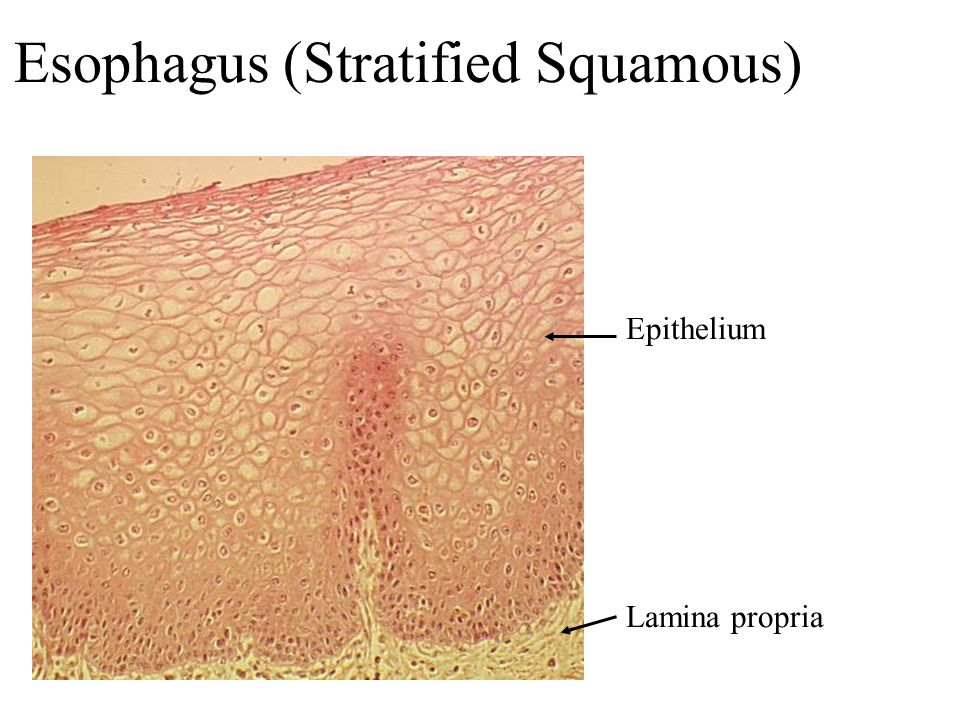Esophagus (Stratified Squamous)
