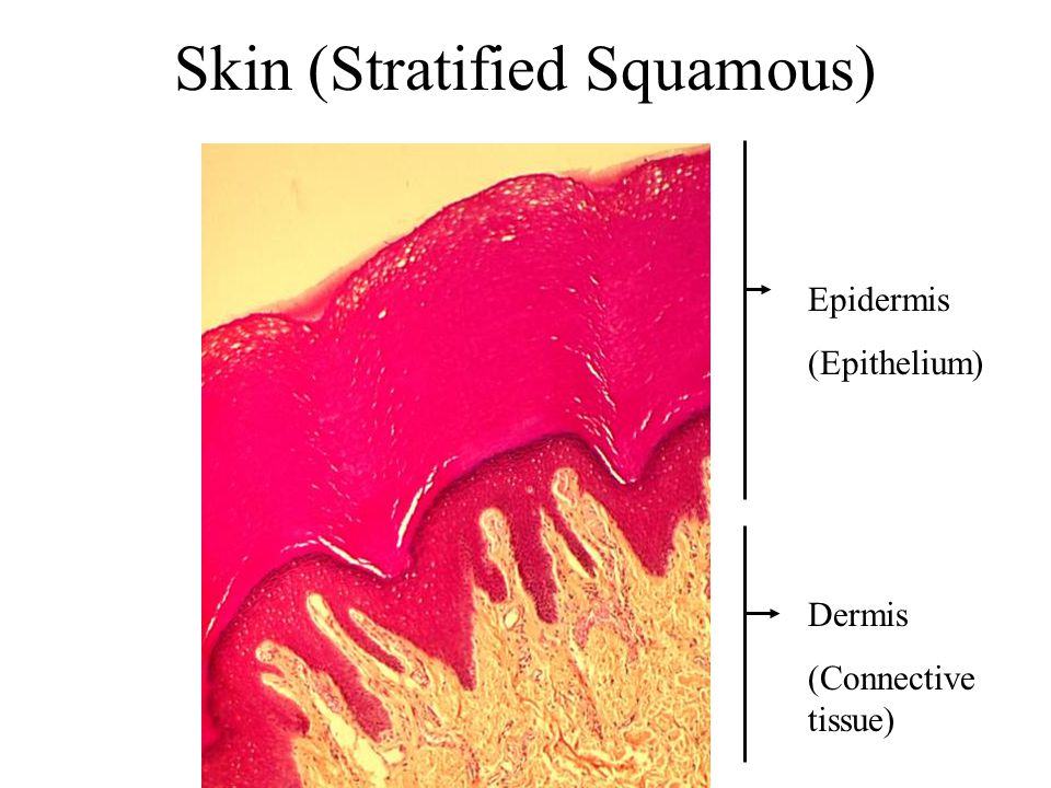 Skin (Stratified Squamous)