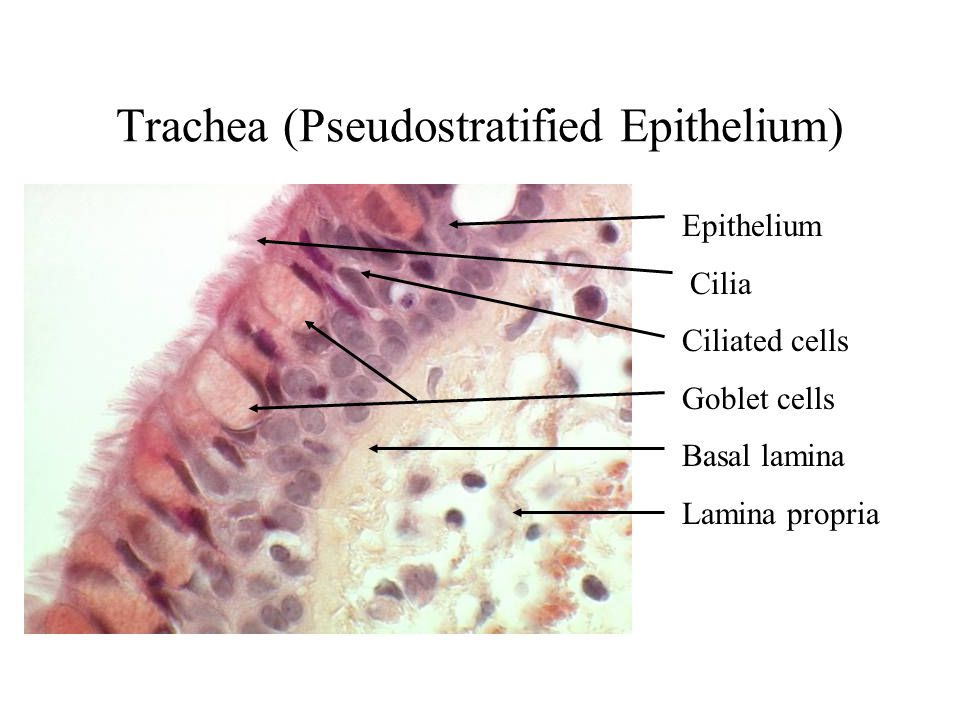 Trachea (Pseudostratified Epithelium)