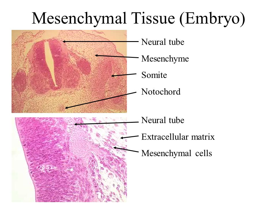 Mesenchymal Tissue (Embryo)