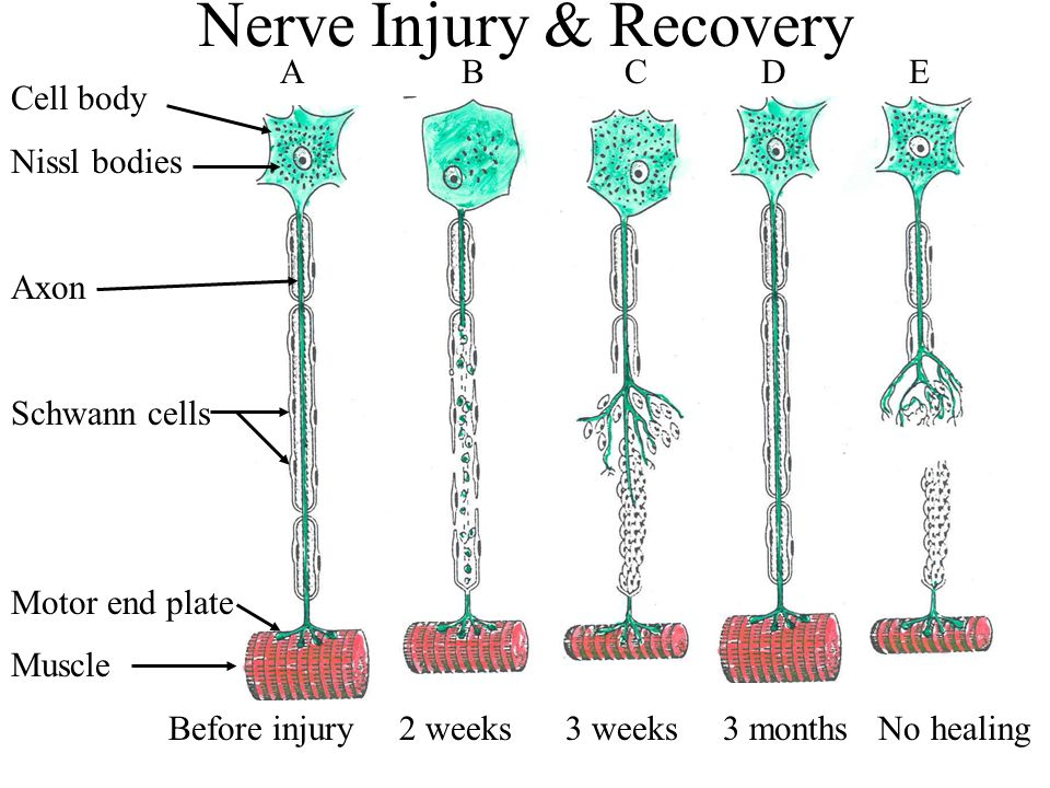 Nerve Injury & Recovery