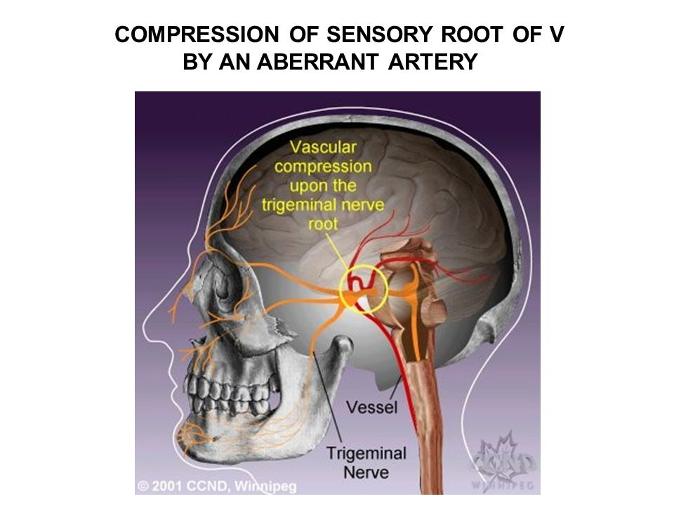 COMPRESSION OF SENSORY ROOT OF V BY AN ABERRANT ARTERY