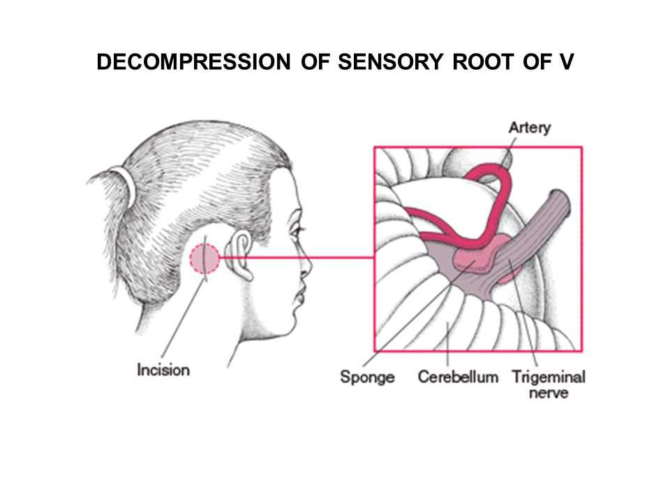 DECOMPRESSION OF SENSORY ROOT OF V