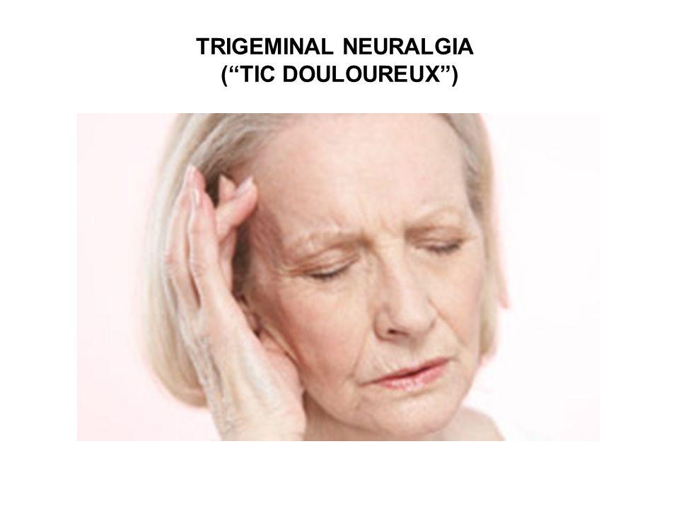 TRIGEMINAL NEURALGIA ( TIC DOULOUREUX )