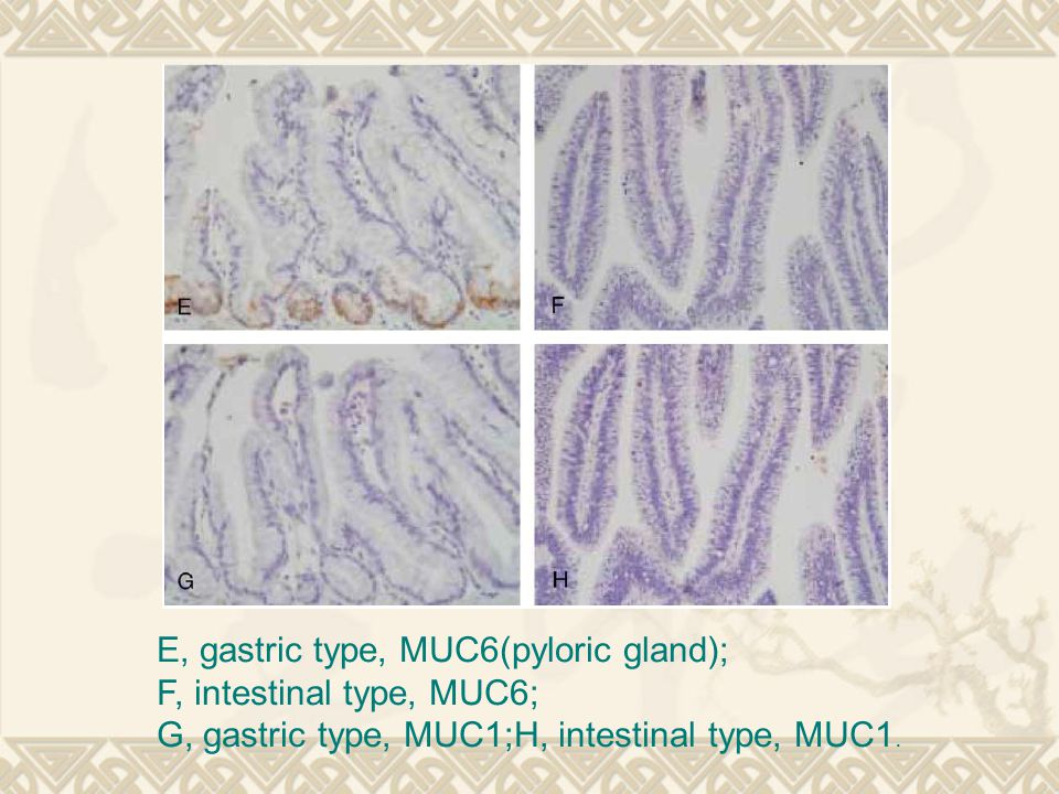 E, gastric type, MUC6(pyloric gland);