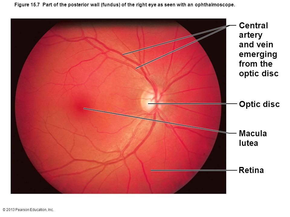 Central artery and vein emerging from the optic disc Optic disc Macula