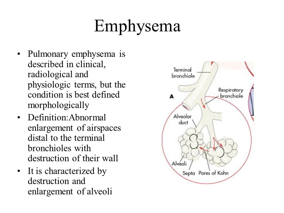 Emphysema Pulmonary emphysema is described in clinical, radiological and physiologic terms, but the condition is best defined morphologically.