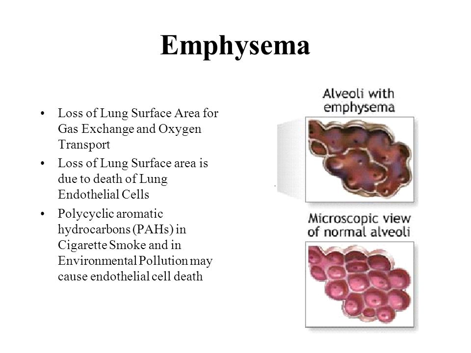 Emphysema Loss of Lung Surface Area for Gas Exchange and Oxygen Transport. Loss of Lung Surface area is due to death of Lung Endothelial Cells.