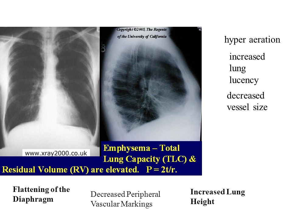 increased lung lucency