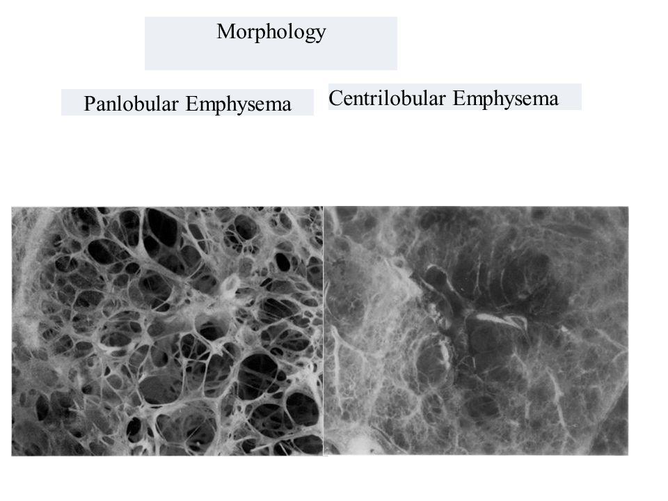 Morphology Centrilobular Emphysema Panlobular Emphysema