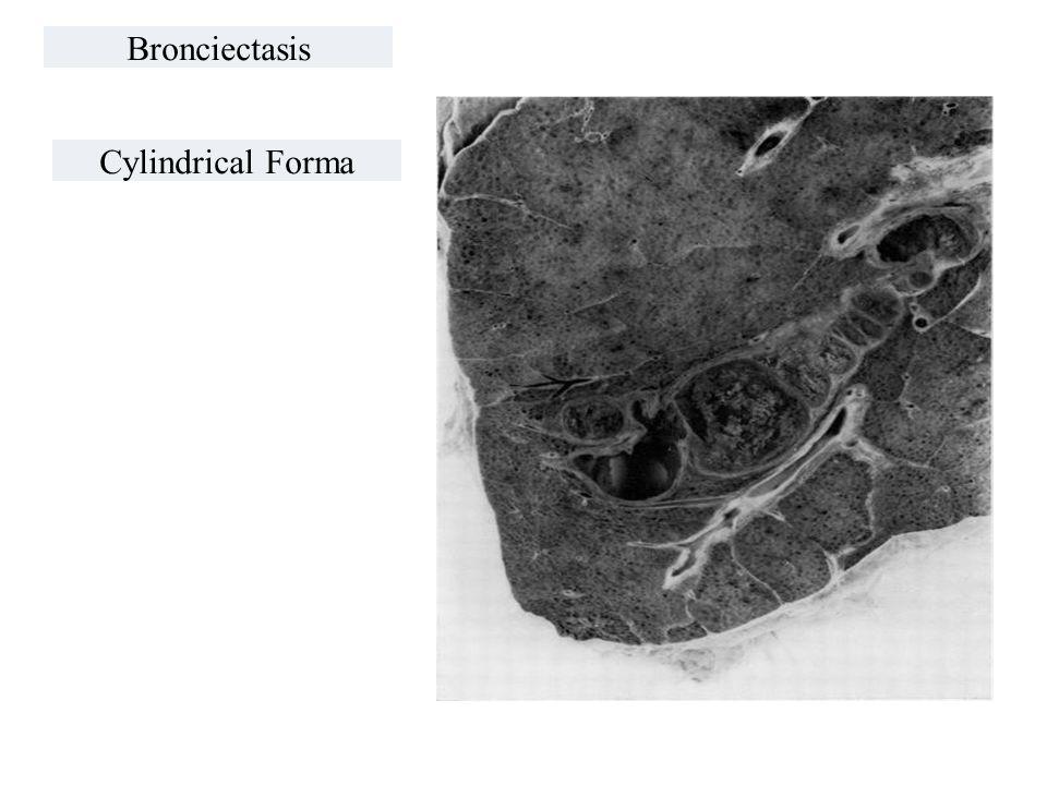 Bronciectasis Cylindrical Forma