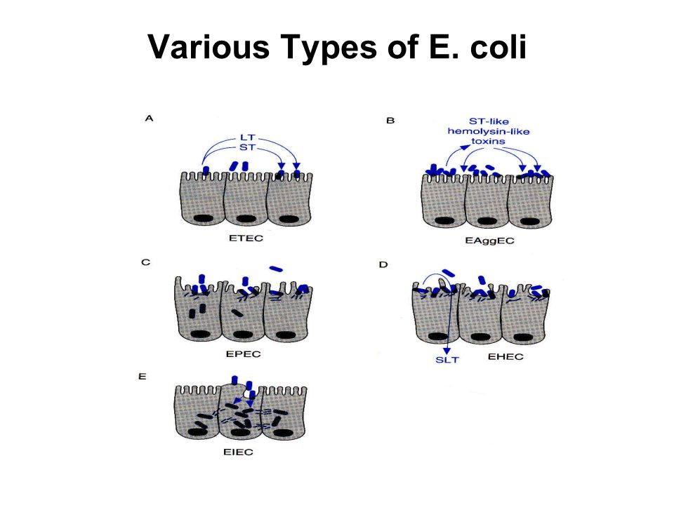 Various Types of E. coli