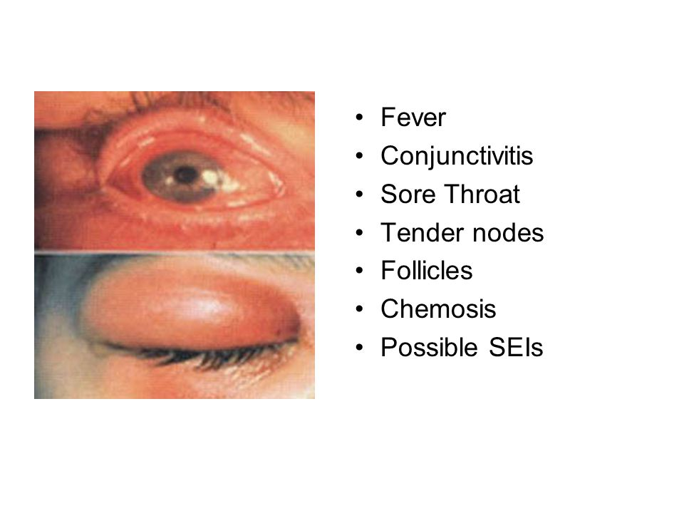 Fever Conjunctivitis Sore Throat Tender nodes Follicles Chemosis Possible SEIs