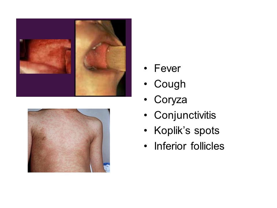 Fever Cough Coryza Conjunctivitis Koplik's spots Inferior follicles