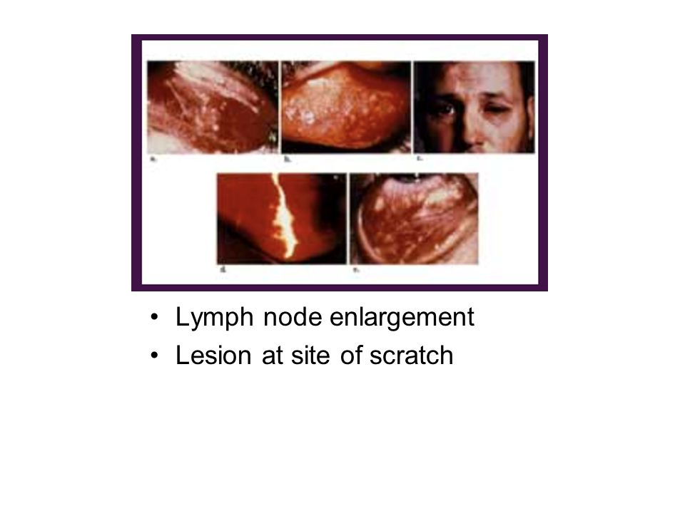 Lymph node enlargement