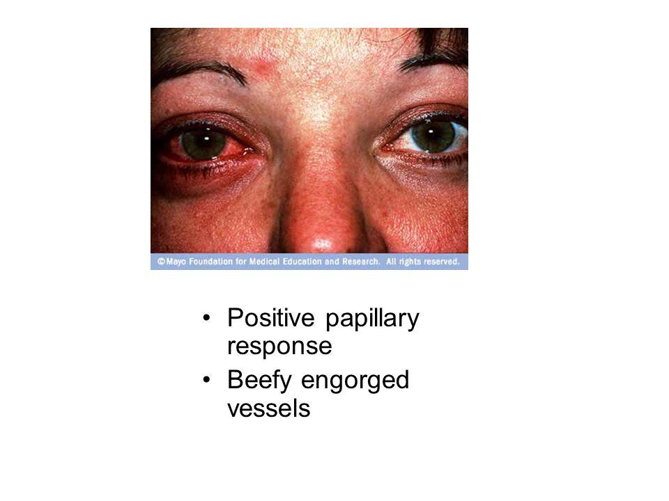 Positive papillary response