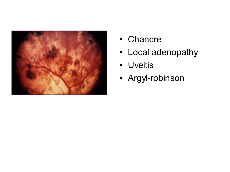 Chancre Local adenopathy Uveitis Argyl-robinson