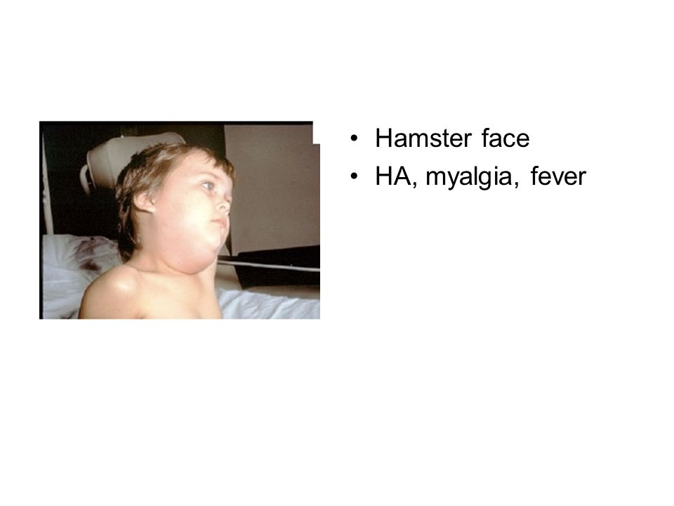 Hamster face HA, myalgia, fever