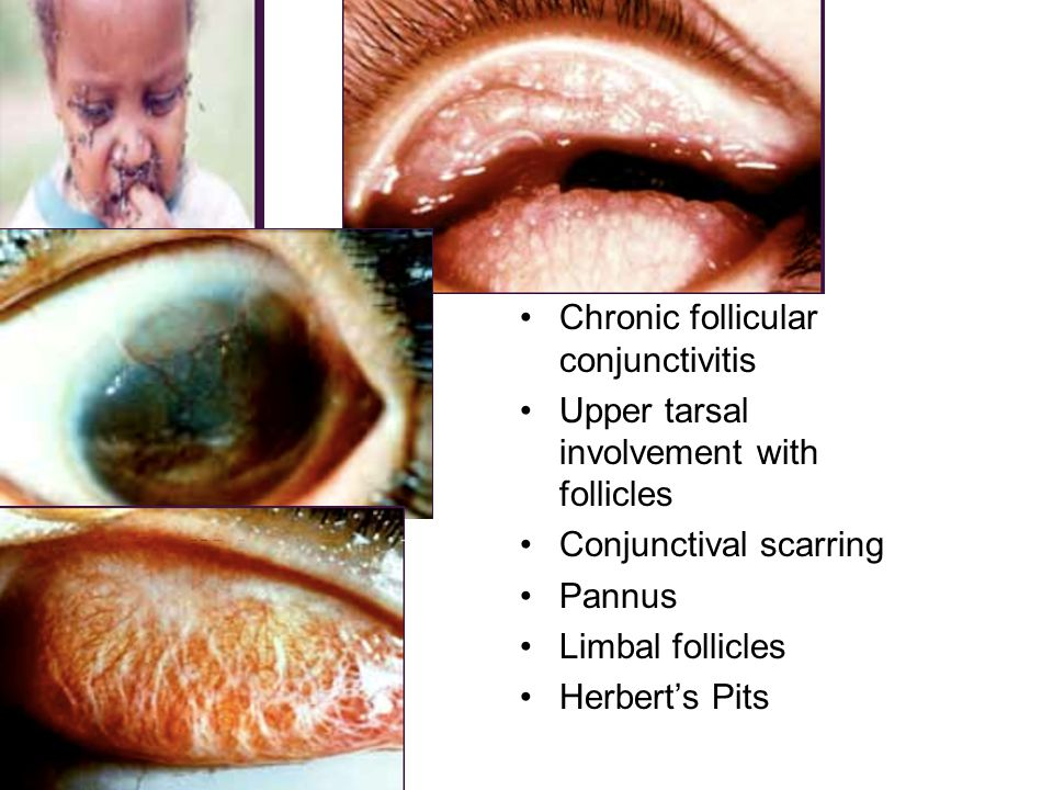 Chronic follicular conjunctivitis