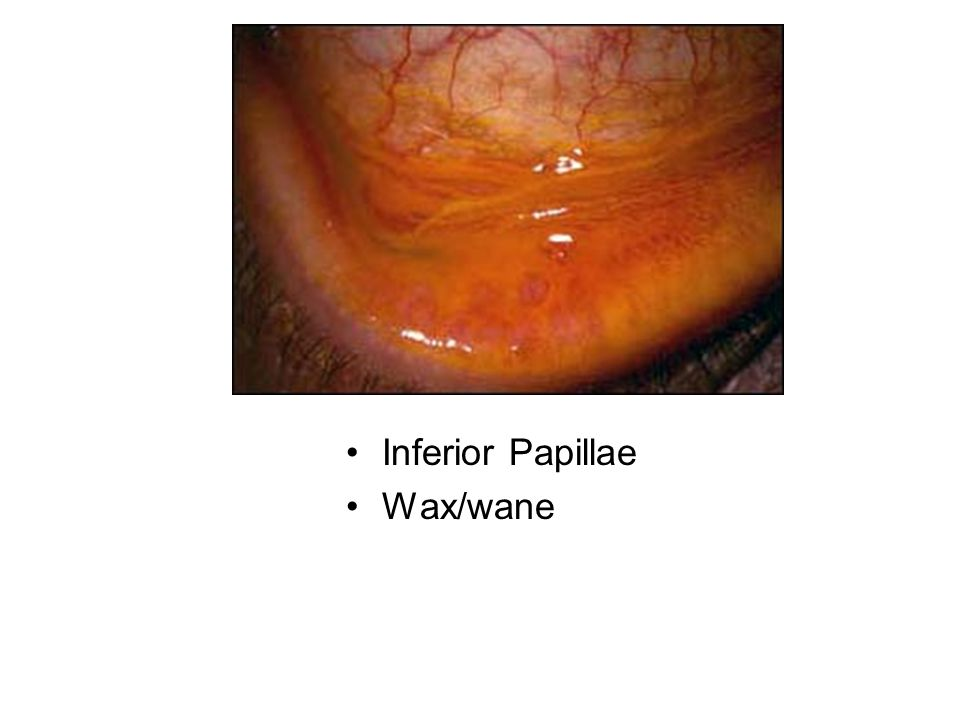 Inferior Papillae Wax/wane