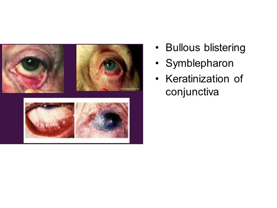 Bullous blistering Symblepharon Keratinization of conjunctiva