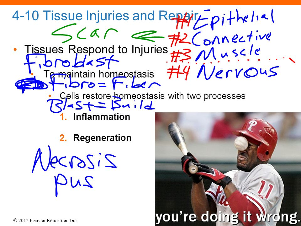 4-10 Tissue Injuries and Repair