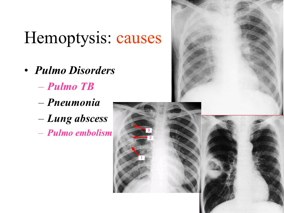Hemoptysis: causes Pulmo Disorders Pulmo TB Pneumonia Lung abscess
