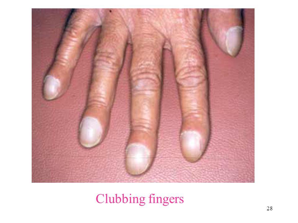 Clubbing fingers