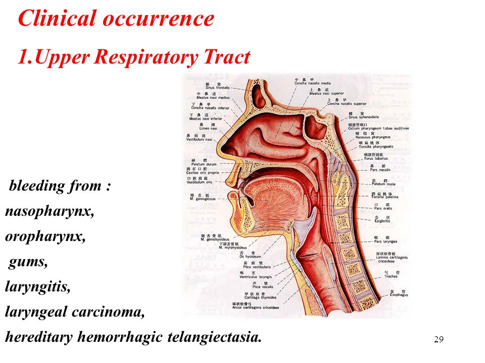 Clinical occurrence 1.Upper Respiratory Tract bleeding from :