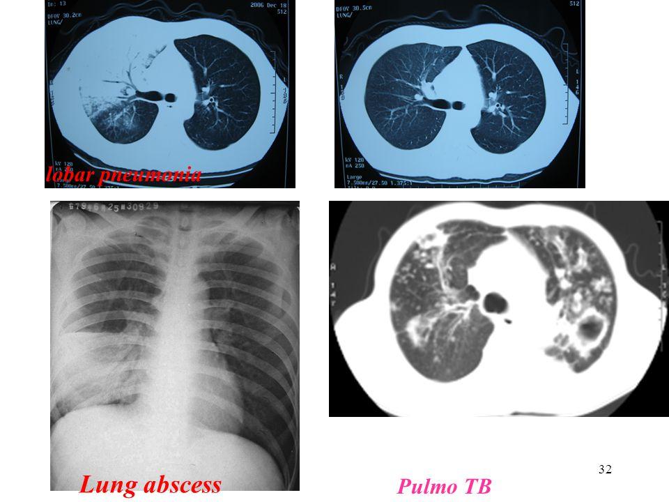 Lung abscess lobar pneumonia Pulmo TB