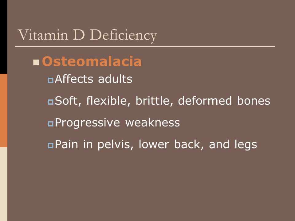 Vitamin D Deficiency Osteomalacia Affects adults