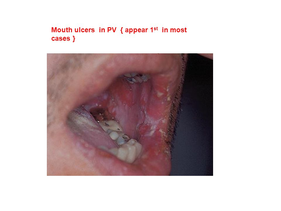 Mouth ulcers in PV { appear 1st in most cases }