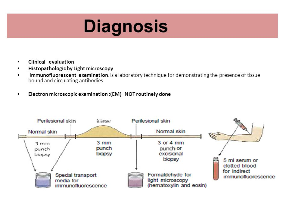 Diagnosis Clinical evaluation Histopathologic by Light microscopy