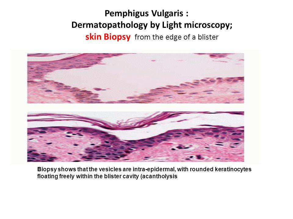 Pemphigus Vulgaris : Dermatopathology by Light microscopy; skin Biopsy from the edge of a blister