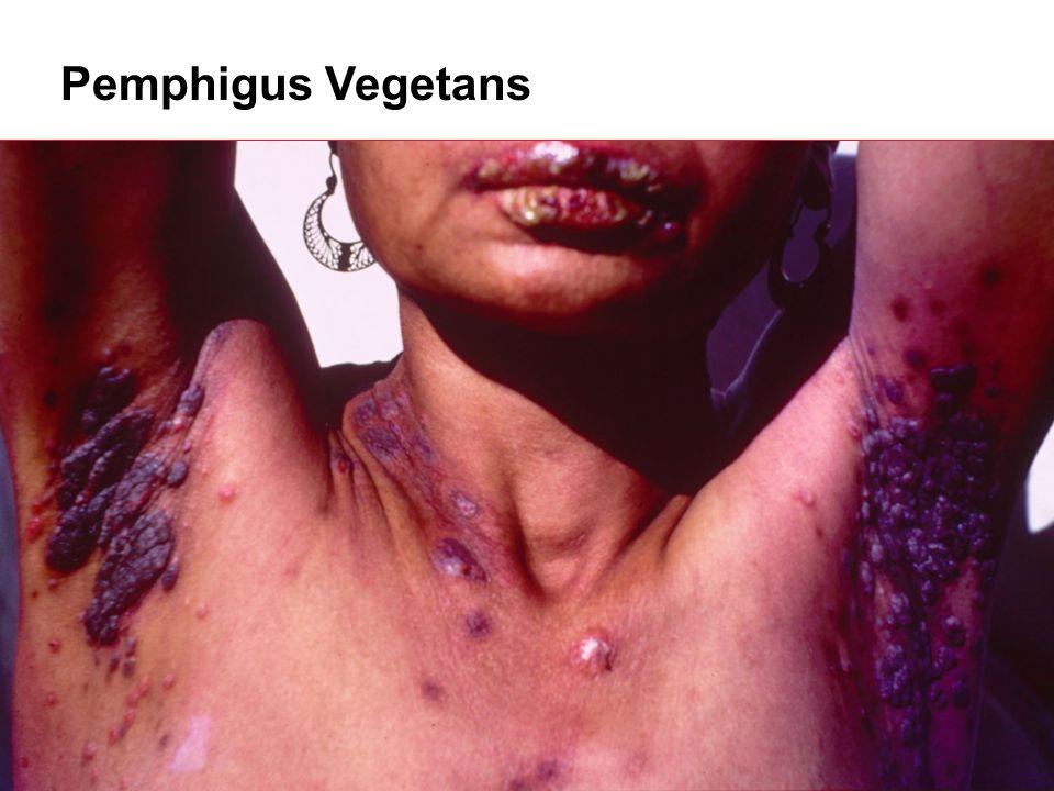 Pemphigus Vegetans