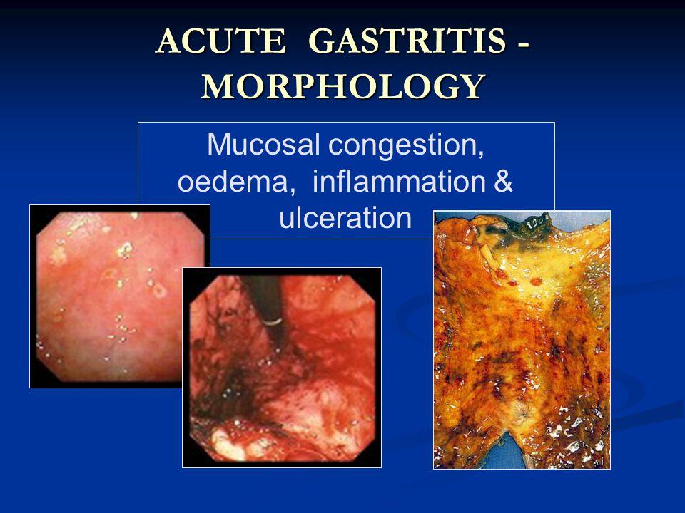 ACUTE GASTRITIS - MORPHOLOGY