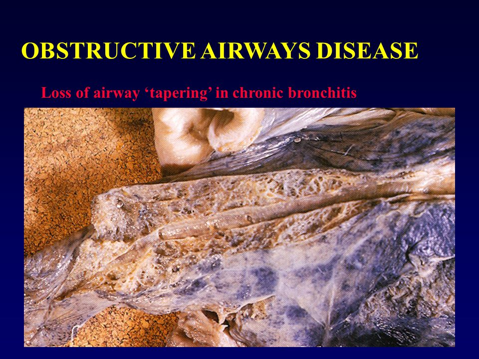 OBSTRUCTIVE AIRWAYS DISEASE