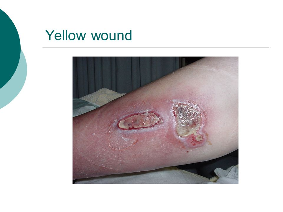 Yellow wound