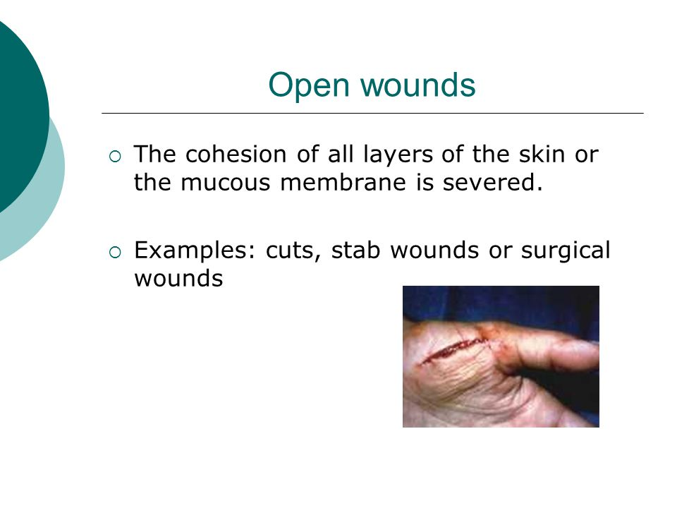 Open wounds The cohesion of all layers of the skin or the mucous membrane is severed.