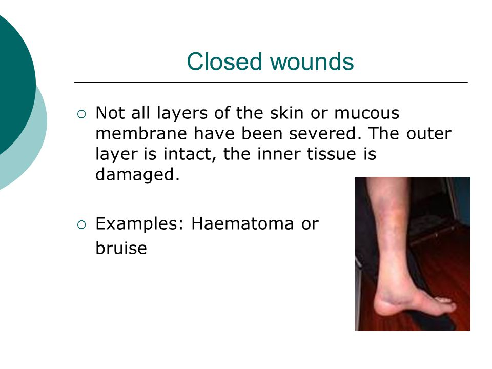 Closed wounds Not all layers of the skin or mucous membrane have been severed. The outer layer is intact, the inner tissue is damaged.