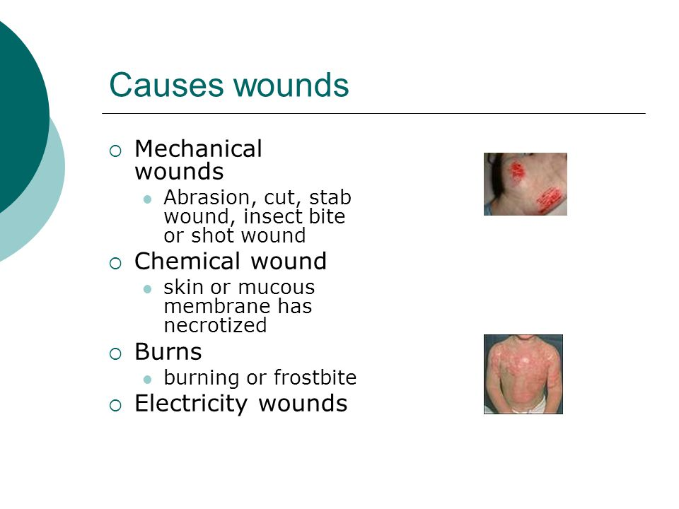 Causes wounds Mechanical wounds Chemical wound Burns