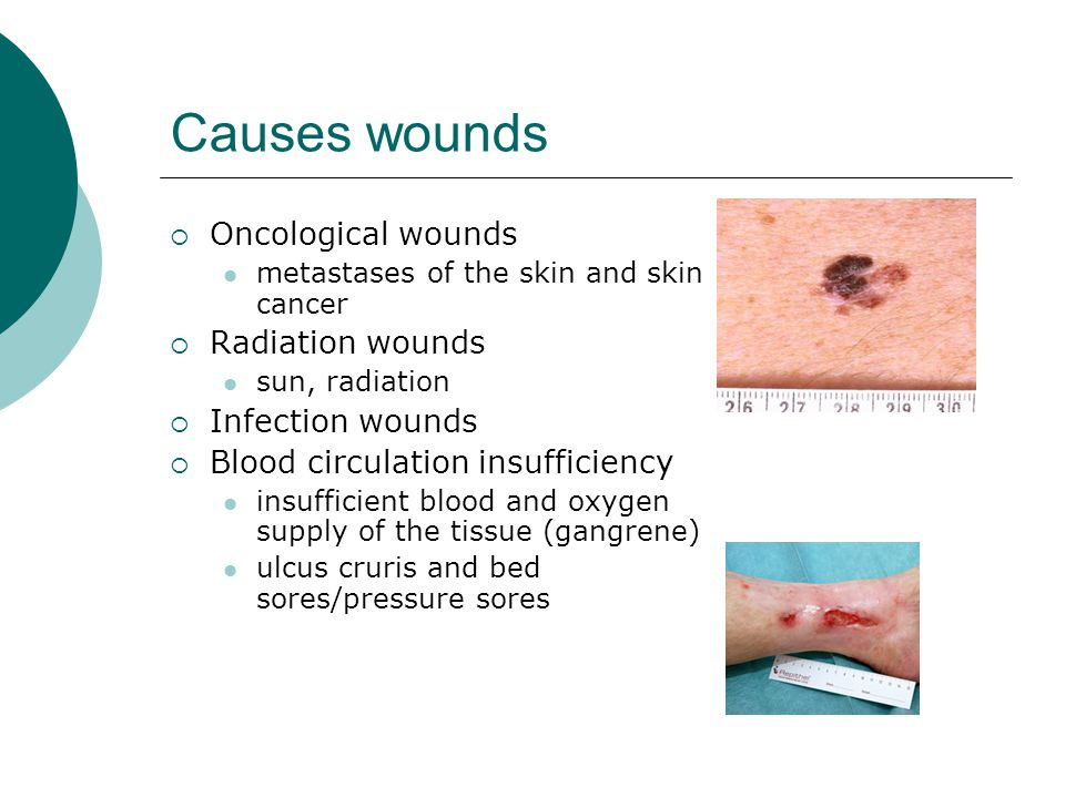 Causes wounds Oncological wounds Radiation wounds Infection wounds