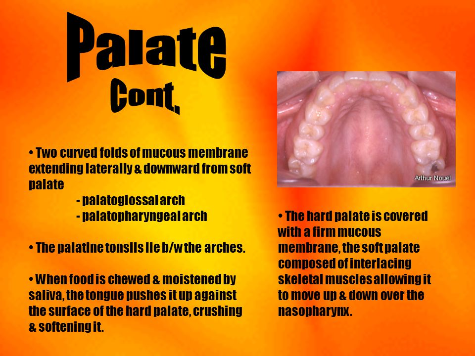 Palate Cont. Two curved folds of mucous membrane extending laterally & downward from soft palate - palatoglossal arch - palatopharyngeal arch.