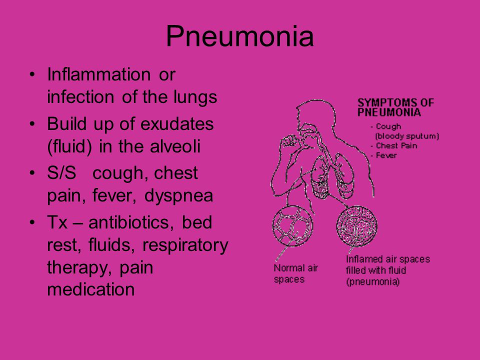 Pneumonia Inflammation or infection of the lungs