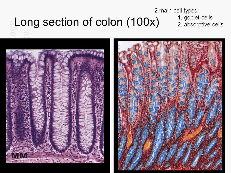 Long section of colon (100x)